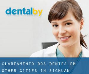 Clareamento dos dentes em Other Cities in Sichuan (Sichuan)