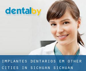 Implantes dentários em Other Cities in Sichuan (Sichuan)
