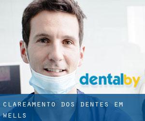 Clareamento Dos Dentes Em Wells Clareamento Dos Dentes Somerset